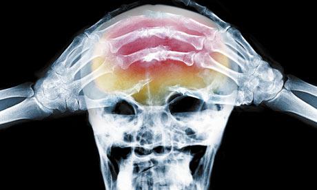 X-ray-of-headache-001